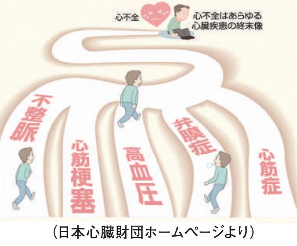 心臓弁膜症についての図解
