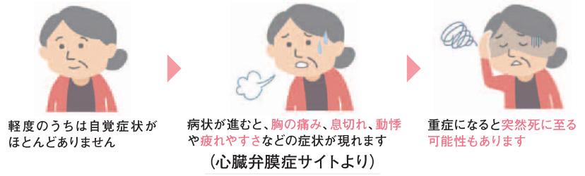 心臓弁膜症の症状イラスト