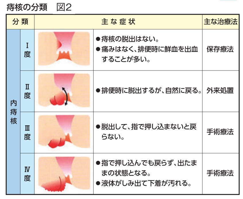 図2 痔核の分類